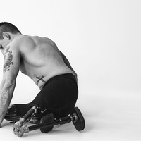 A háború keserű öröksége - Bryan Adams fotói súlyosan sebesült katonákról