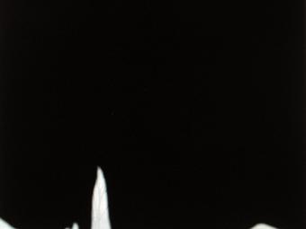 Variációk - Fekete-fehér (10 fotó)