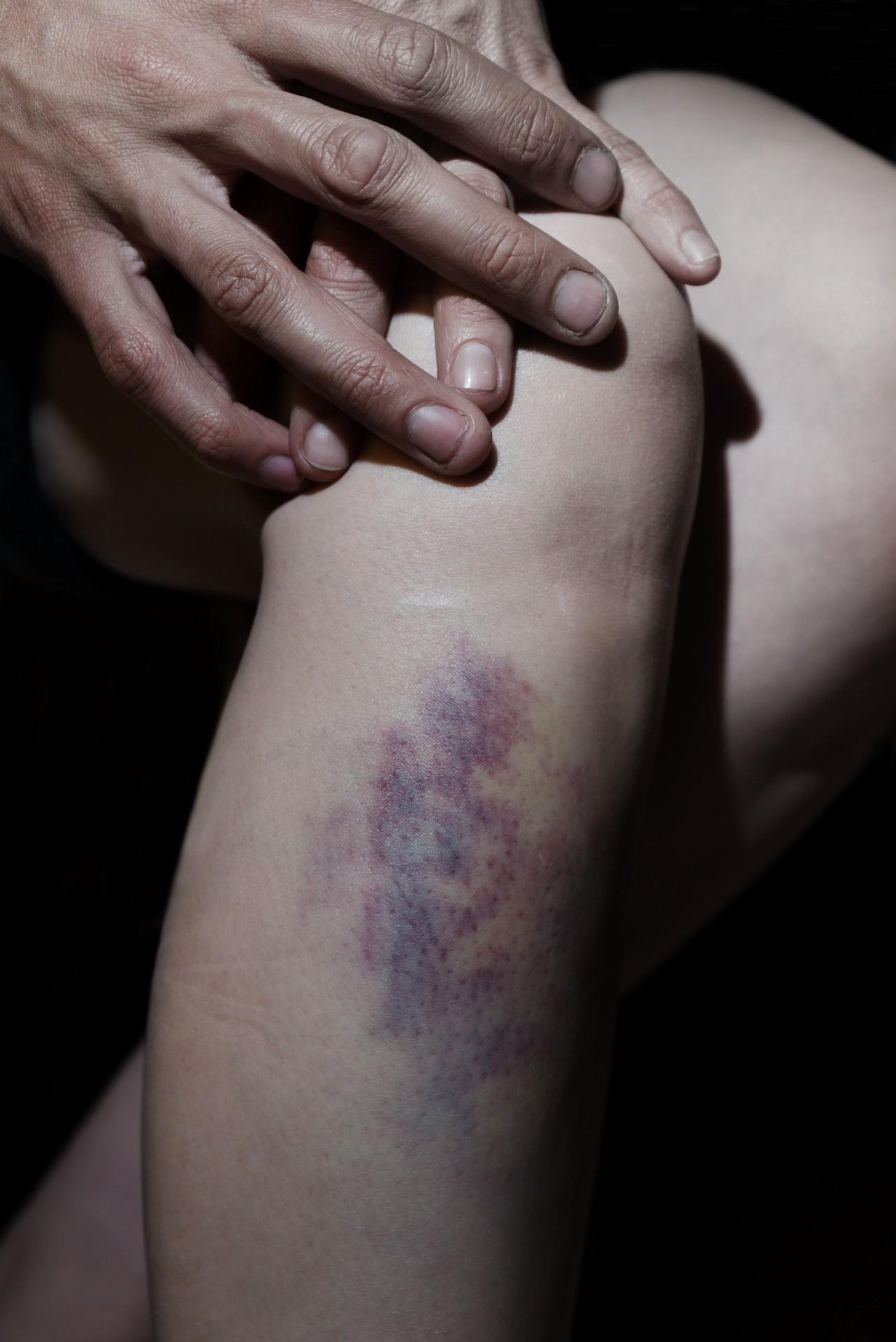 Fotó: Koleszár Adél: Rendőri verés, részlet Az erőszak sebei című sorozatból