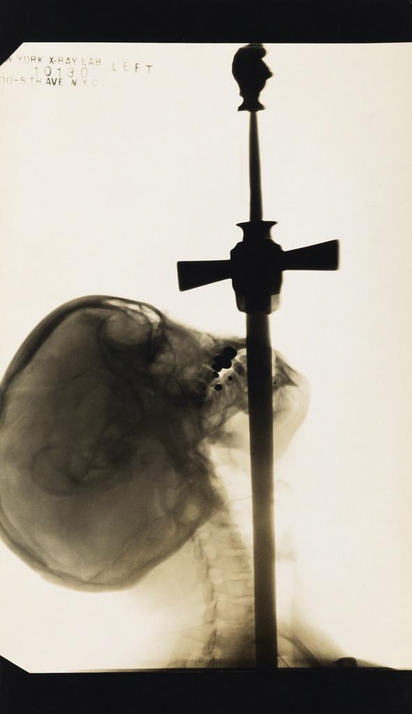 Fotó: Edward J. Kelty: Ajax, a kardnyelő röntgenképe, 1928 © Collection of Ken Harck