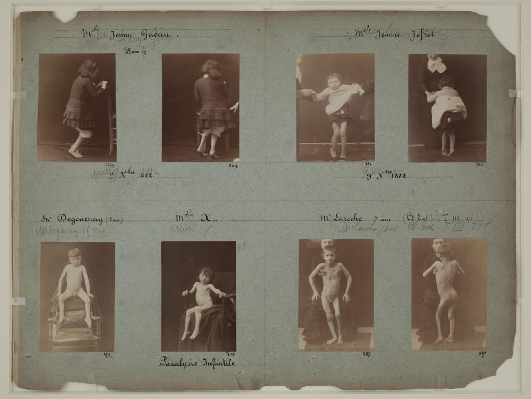Fotó: Albert Londe: Charcot páciensei, Salpêtrière Kórház, Párizs, 1876-1880 © Bibliothèque Municipale de Toulouse