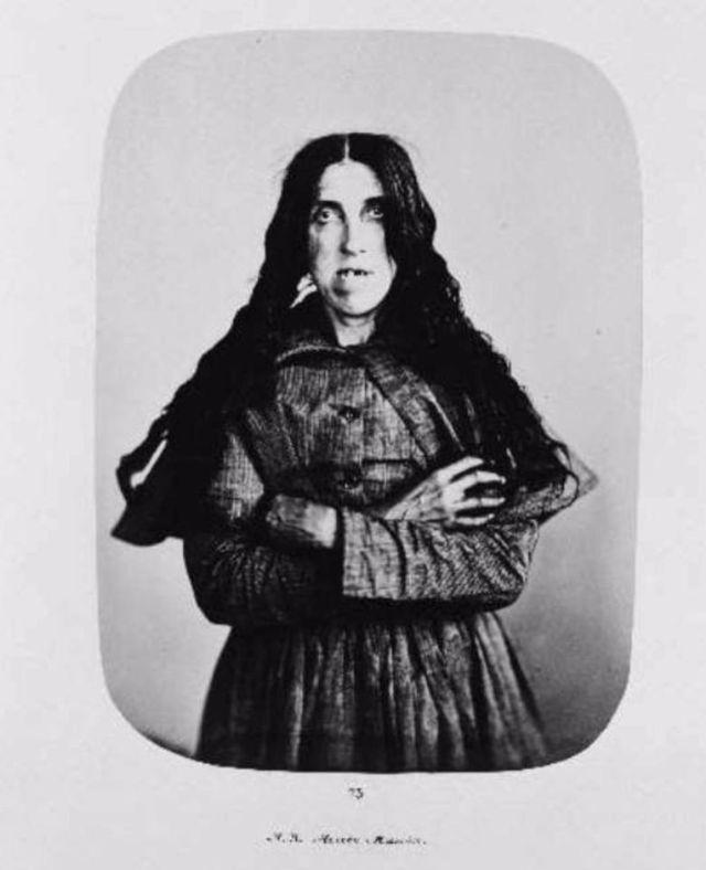 Fotó: Henry Hering:  Ismeretlen nő, diagnózis: akut mánia © Bethlem Art and History Collections Trust