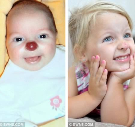 a98421_birthmark_2-red-nose.jpg