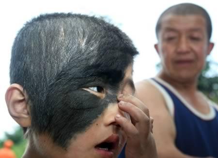 a98421_birthmark_7-face_1.jpg