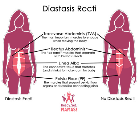 ready-set-mamas-diastasis-recti-diagram1.jpg