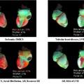Világszínvonalú szívvizsgálat az RMC-ben!