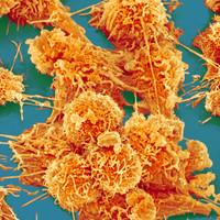 Molekuláris sorozatgyilkosaink - avagy tumorképződés molbiolos szemmel