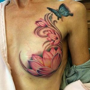 Mellrákból kigyógyult nők szépséges tetoválásokkal