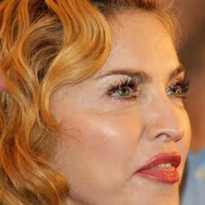 Mi történt Madonna arcával?
