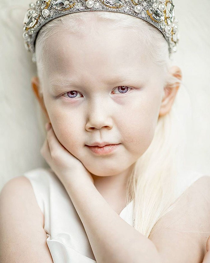 albino-girl-snow-white-nariyana-siberia-10.jpg