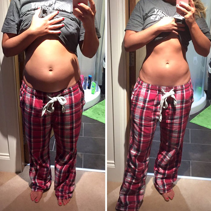 before-after-posture-instagram-body-photos-1-58c10954650b6_700.jpg