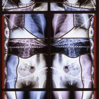 Gótikus art vs Radiológia