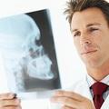 Omega 3 zsírsavak a csontritkuláson is segíthetnek