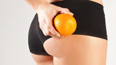 5 tipp a narancsbőr ellen!