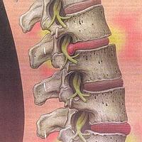 Gerincproblémák és a belső szervi elváltozások idegrendszeri kapcsolata