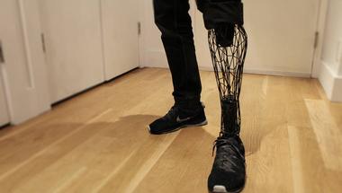3D nyomtatott titán protézis