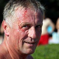 Kővel dobták fejbe röplabdázás közben Topoláneket