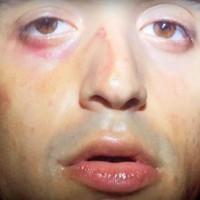 Arca összevert arcát mutatja új klipjében