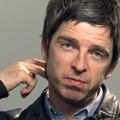 Noel Gallaghert állandó fülzúgás gyötri
