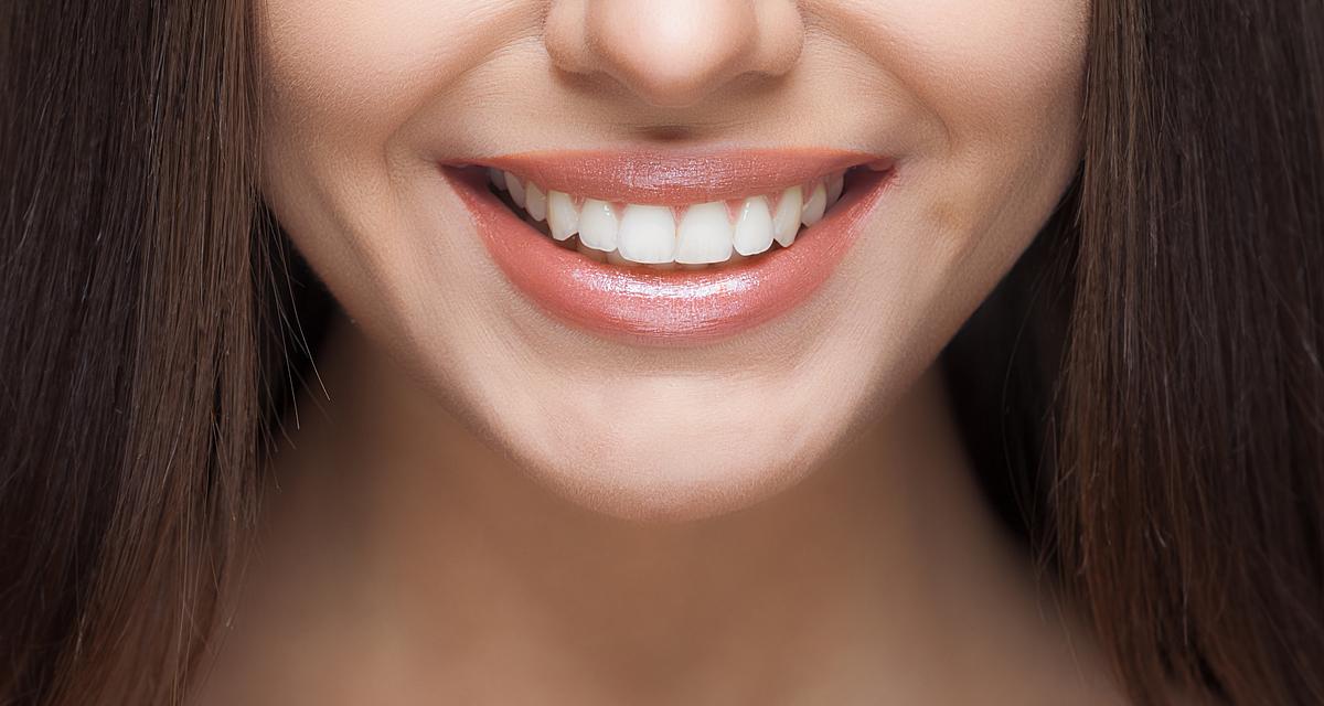 Fogfehérítés házilag: ezt javasolja a fogorvos, ha egyszerű megoldásra vágysz