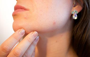 Ronda pattanásai voltak, ma már sminkelnie sem kell: 5 arcápolási tipp a bloggertől