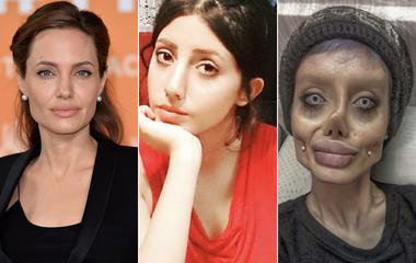 Ijesztőre torzult a tinilány arca a plasztikától: Angelina Jolie-ra akart hasonlítani