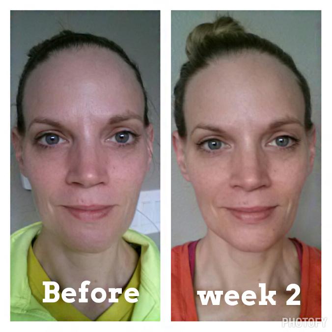 A második hét után az arcbőre teltebb, simább lett.