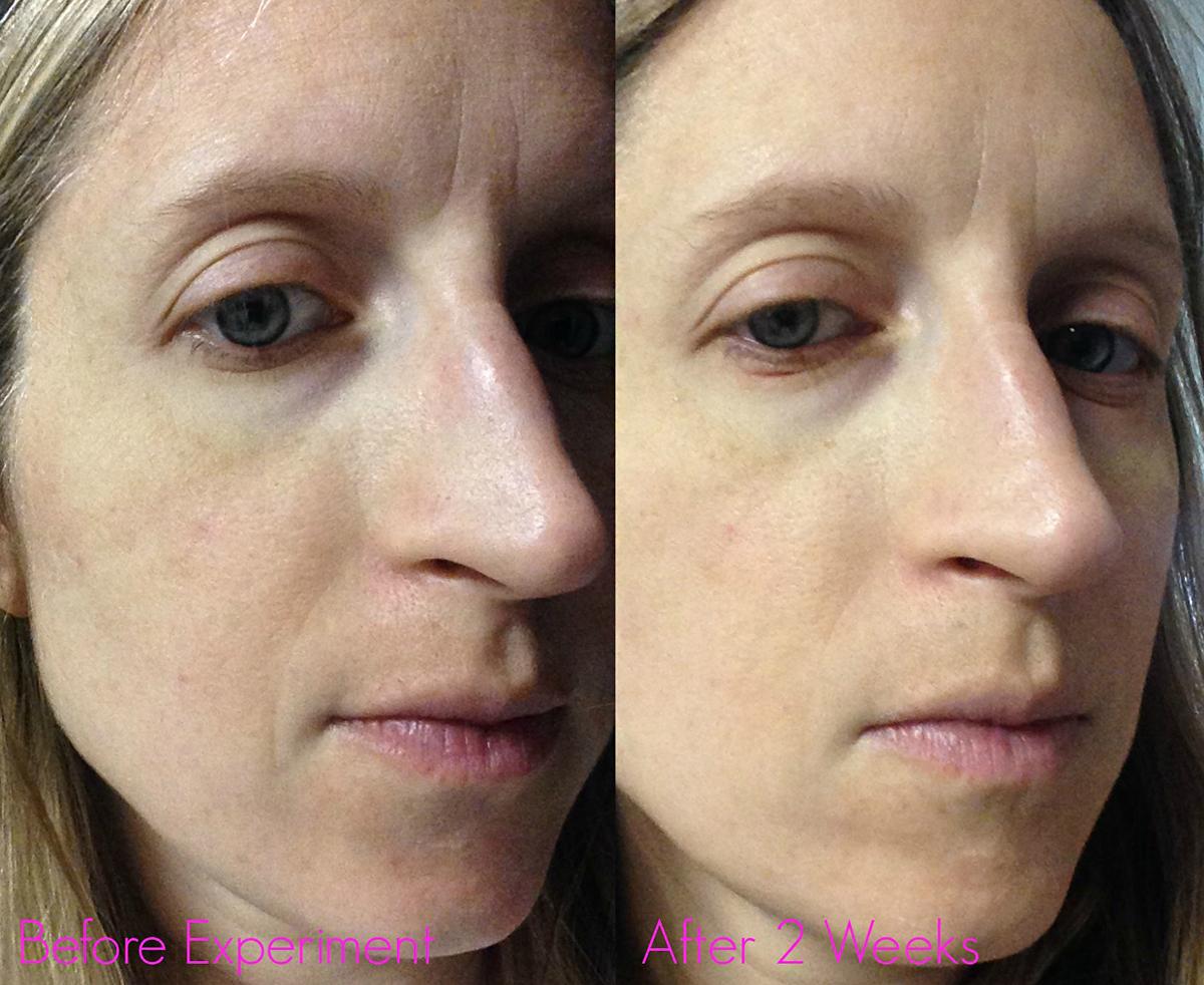 Ennek a nőnek az arcbőrén apró jelekben mutatkozik meg a változás. A több folyadékbevitel hatására a mimikai ráncai már kevésbé szembetűnőek, pórusai zártabbak, az arca frissebb.