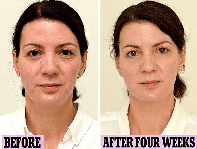 Szintén szembetűnő eredmény látszik ennek a nőnek az arcbőrén. A megnövelt vízfogyasztás hatására ráncai kisimultak, fiatalosabb, üdébb lett a bőre.