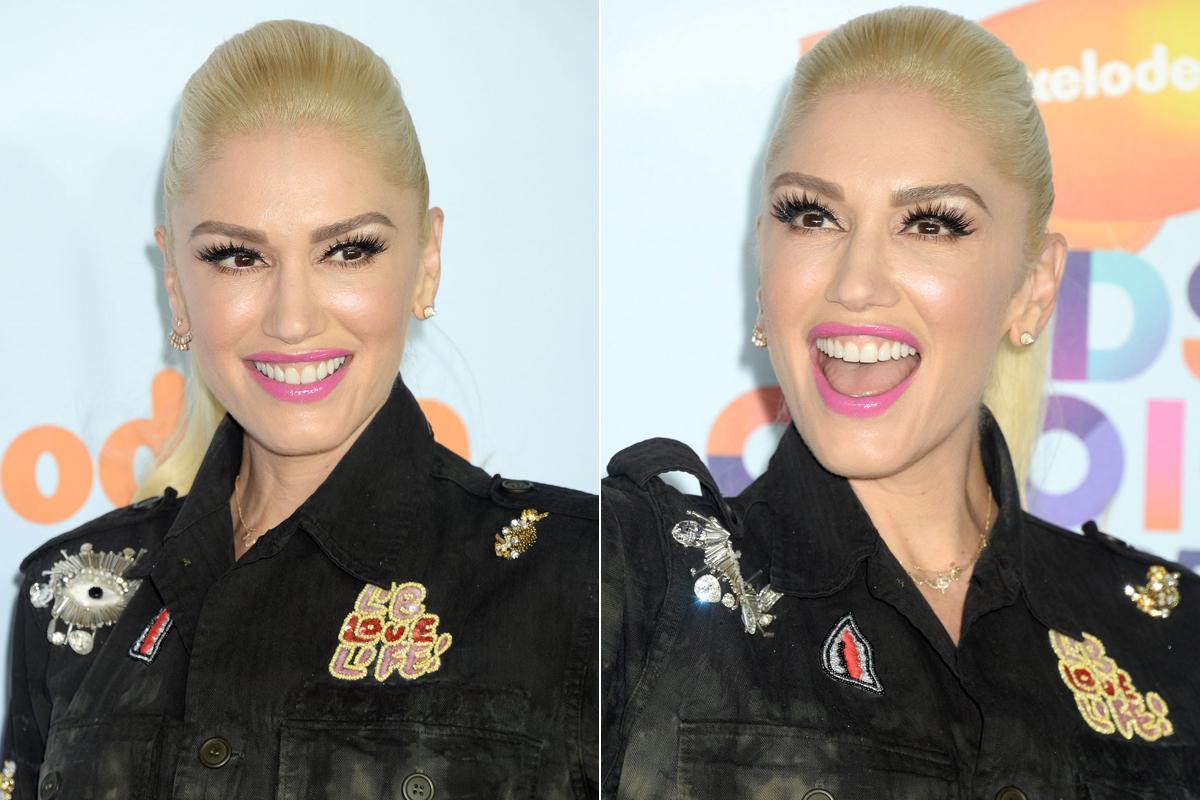 Retus nélkül sem más a helyzet, Gwen Stefani arca olyan, mint egy viaszbabáé.