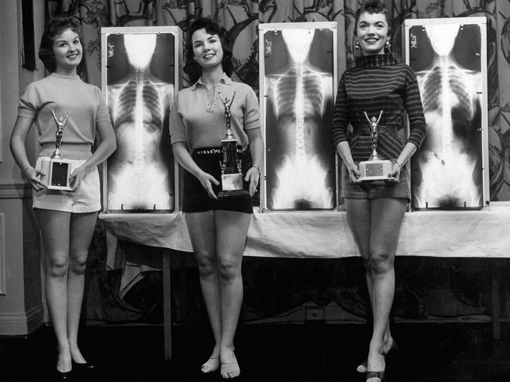 1956_a_miss_egeszseges_gerinc_verseny_gyoztesei_chicago-ban_a_kiropraktorok_tamogatasaval.jpg
