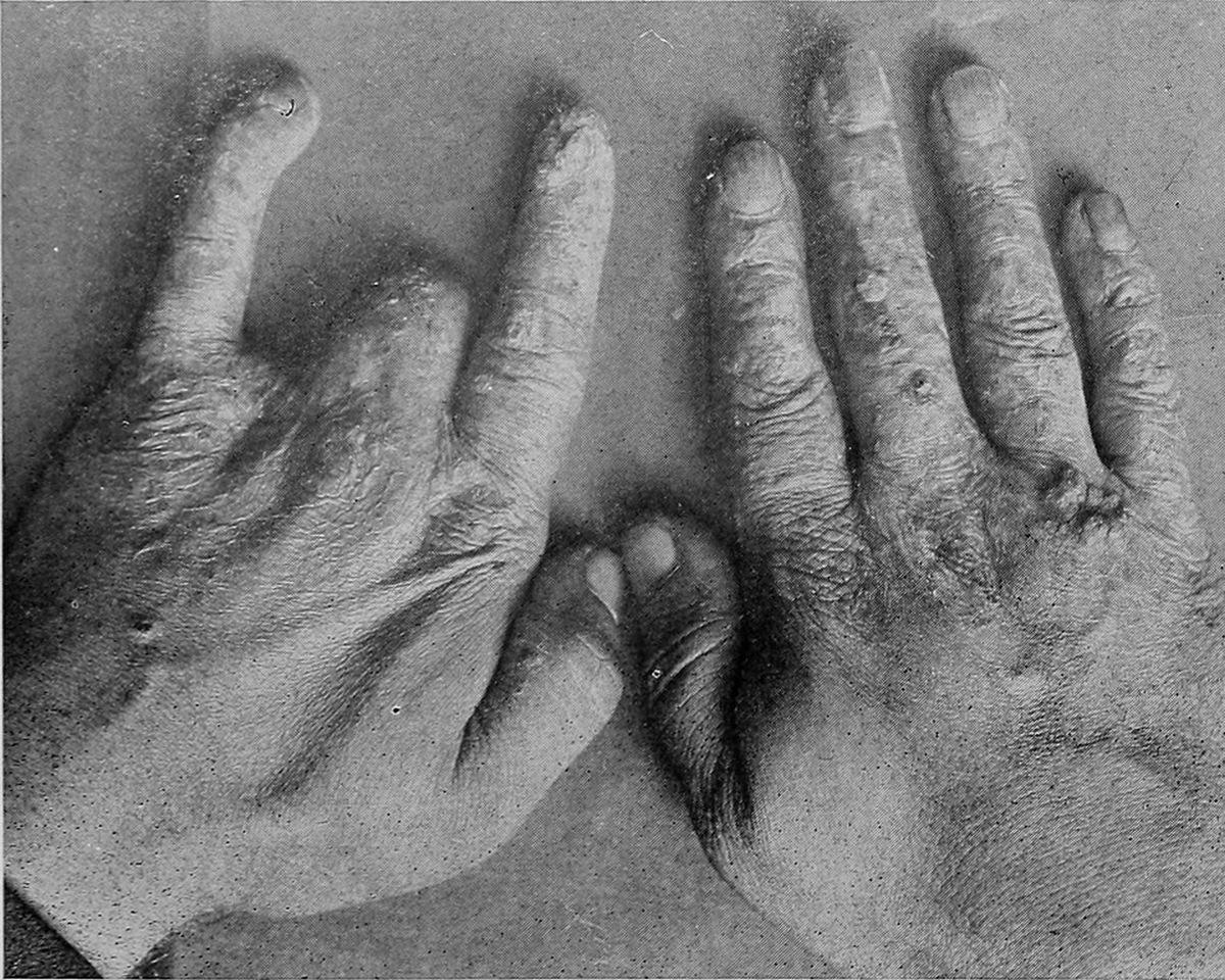 1909_mihran_kassabian_ormeny_szarmazasu_amerikai_radiologus_sugarfertozott_kezei_38_eves_koraban_egy_evvel_halala_elott.jpg