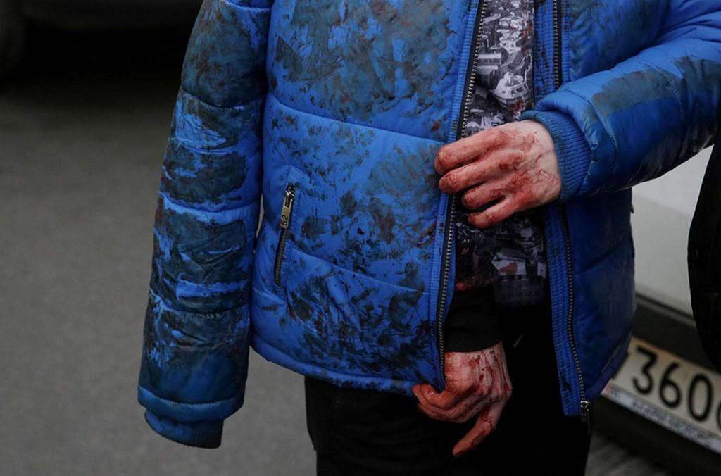 2017_04_03_an_injured_person_walks_outside_sennaya_ploshchad_metro_station_following_an_explosion_in_st_petersburg_russia_14_dead.jpg