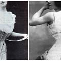 Az implantátumok kora előtt: a női test (de)formálásának története II.
