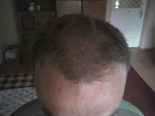 3. hónap - hajbeültetés után