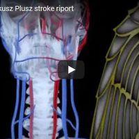 RTL Klub Fókusz Plusz stroke riport 2017.10.07.