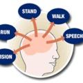 Százharmincnyolcadik bejegyzés - Vendégposzt - A stroke-ot nem mindig vérrög okozza
