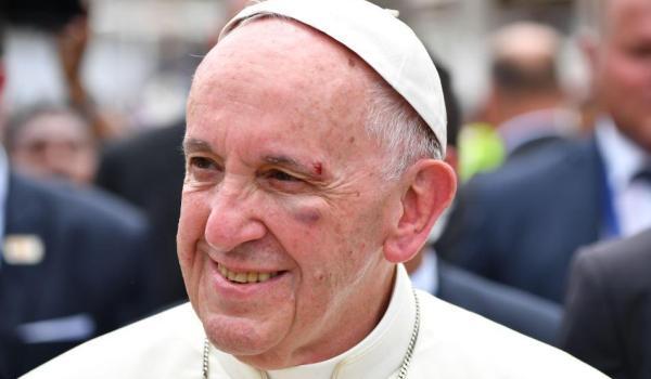pope_francis_black_eye_234059.jpg