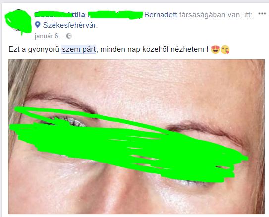 szem_part.PNG