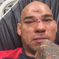TD|MMA: Cyborg: három hónap, és újra harcolhatok