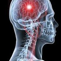 Újítás az agyi vérrög eltávolításában: hálóval gyógyítanak