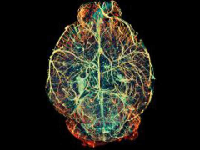 Implantátumok után nanorészecskék - az agy gyógyításának legújabb forradalma