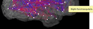 Emberi agygráfot készítettek az ELTE kutatói