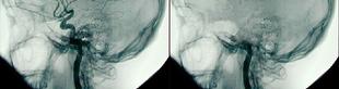 Az agyi leépülés augusztusi és szeptemberi tünetei