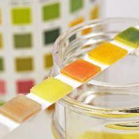 Mit árul el a vizelet színe?