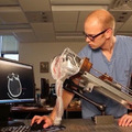 Agyi vérömlenyeket felszívó sebész robot