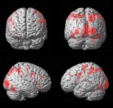 21. fMRI, avagy a működő elme lefényképezése