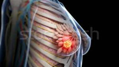 Mammográfiás szűrővizsgálat