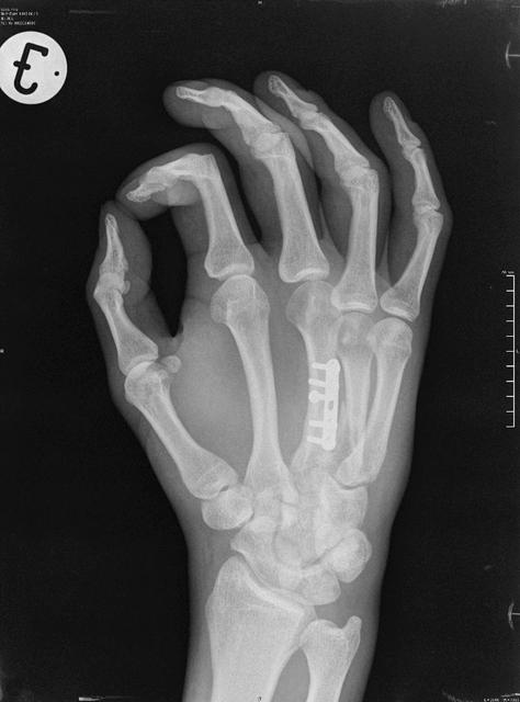 Fájdalomtest I-II-III-IIII.