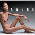 Anorexiadivat erős idegzetűeknek